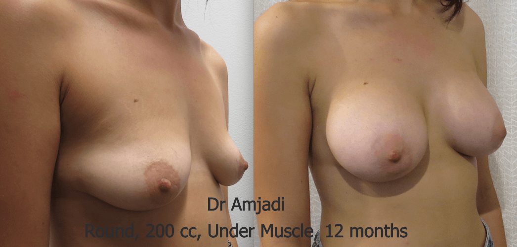 breast implants before after