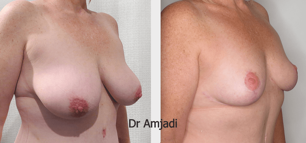breast lift before after