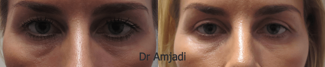 eyelids before after