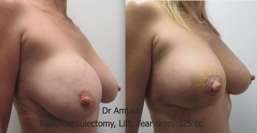lift with implants before after